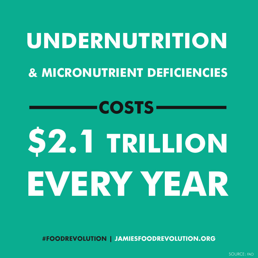 Undernutrition-costs-global (1)